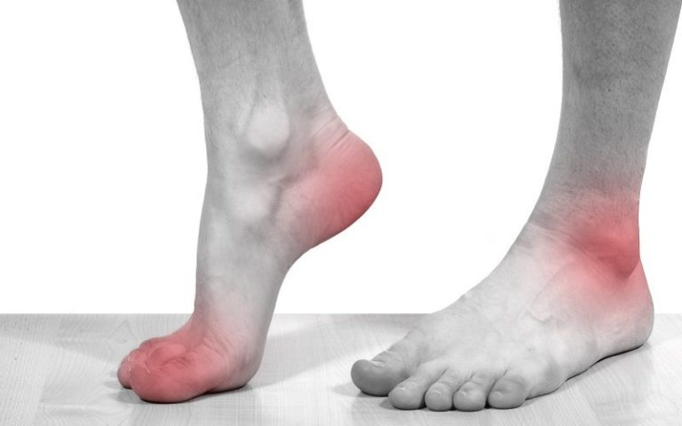 Лечение подагры народными средствами, как лечить подагрический артрит на пальцах ног