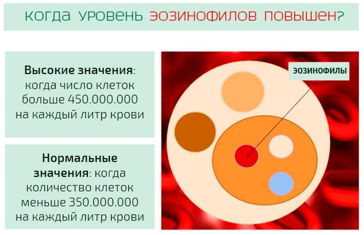Различаются следующие степени эозинофилии