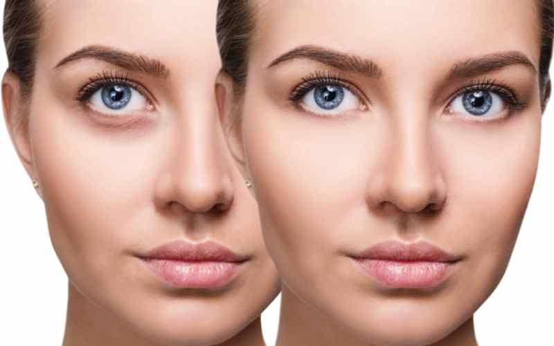 Синяки под глазами — как убрать, причины появления у мужчин и женщин