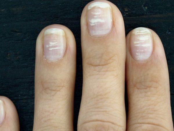 Белые пятна на ногтях - внутренние причины