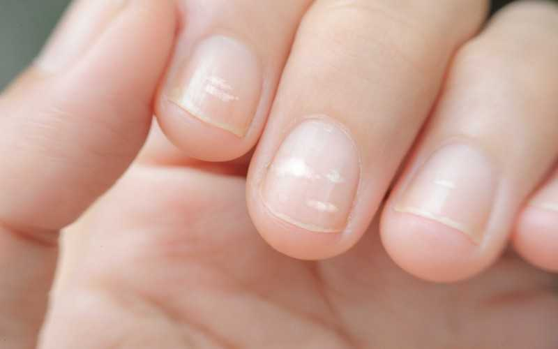 Как лечить белые пятна на ногтях