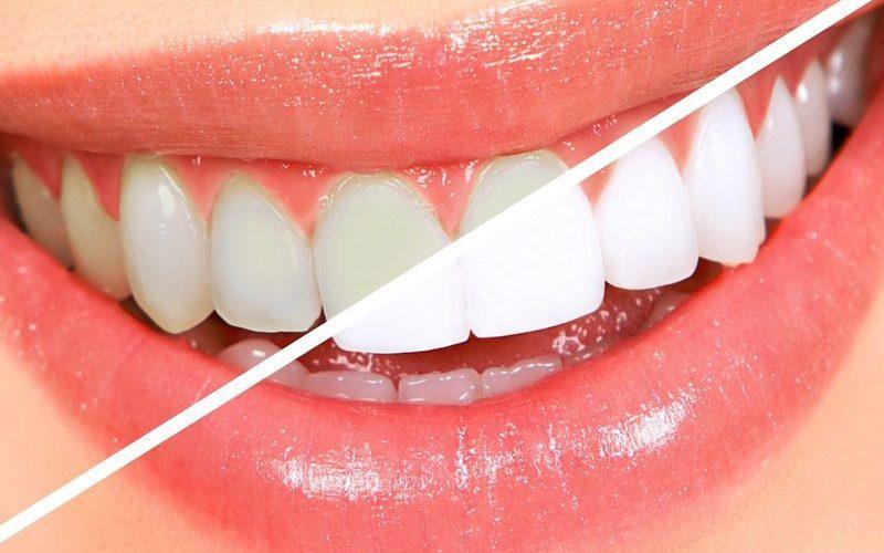 Отбеливание зубов — в домашних условиях, в стоматологиях