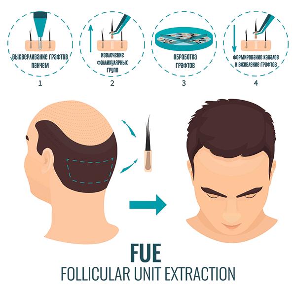 Бесшовный Follicular Unit Extraction (FUE)