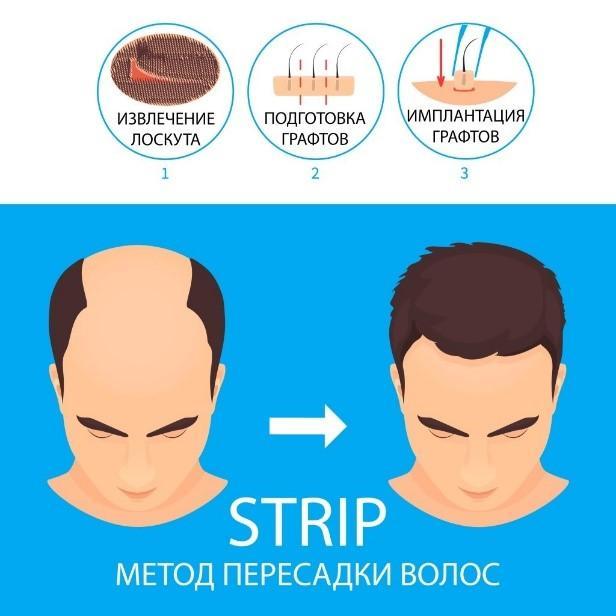 Операционный Strip-метод
