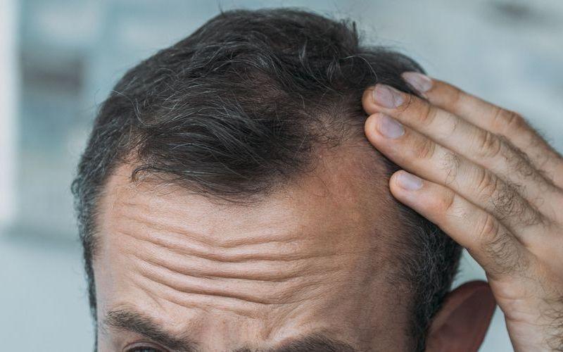 Всё, что нужно знать о трансплантации волос